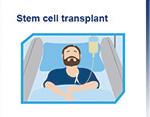 stem-cell-transplant