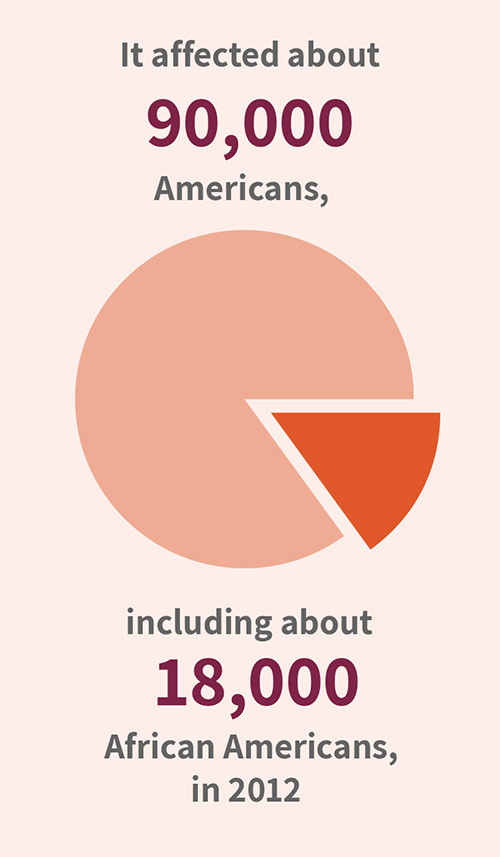 It affected about 90,000 Americans, including about 18,000 African Americans, in 2012.