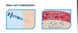 stem cell mobilization